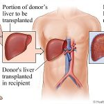 Benefits And Risks: Liver Transplant in Delhi